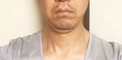 2019/09/26の顔下半分