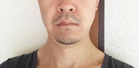 2020/01/09の顔下半分
