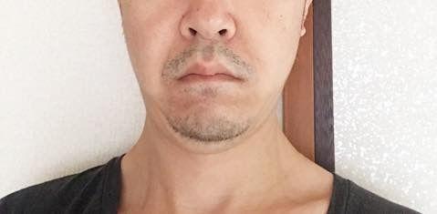 2020/01/16の顔下半分