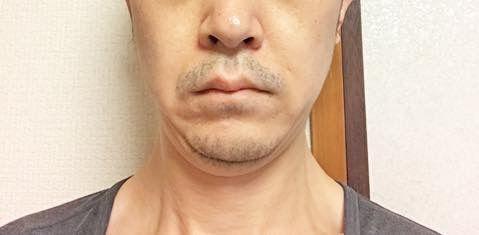 2020/01/23の顔下半分